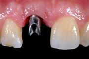 implantologia4_clip_image002