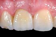 implantologia4_clip_image004
