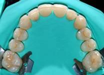 endodonzia1_clip_image002